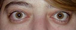 exophthalmia